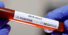 У замминистра финансов КР выявили коронавирус